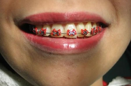 Don't smile if sporting the Hello Kitty Braces