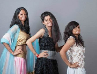 Heart-Warming: Acid Attack Survivors Smile And Inspire for a Photo Shoot