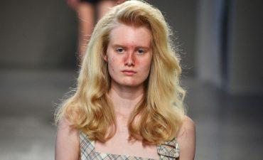 zit beauty trend  (2)